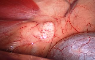 Pericardiectomía toracoscópica